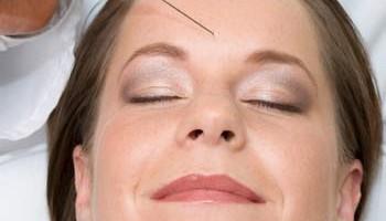 Botox und Dermalfiller Trier